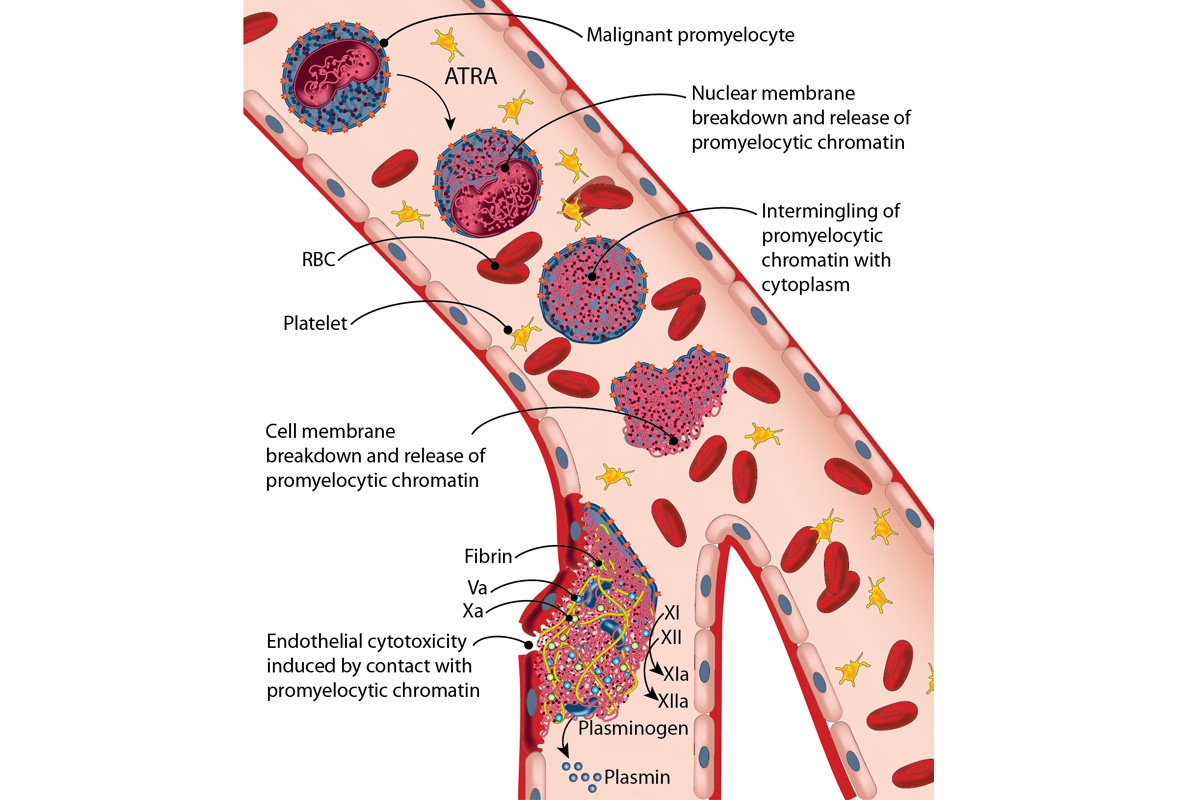 Mechanism and effects of ETosis in malignant promyelocytes following exposure to ATRA
